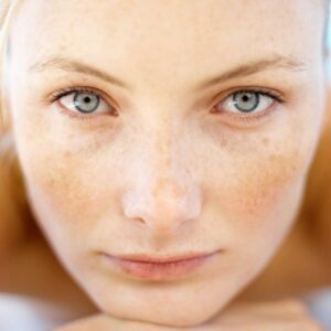 Skin Pigmentation Treatment at Prescription Skin Care