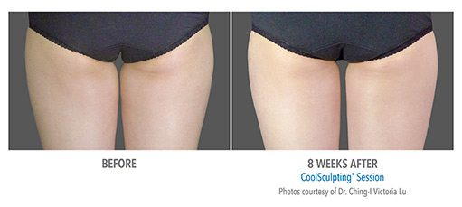 female5 CoolSculpting