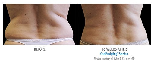 female7 CoolSculpting