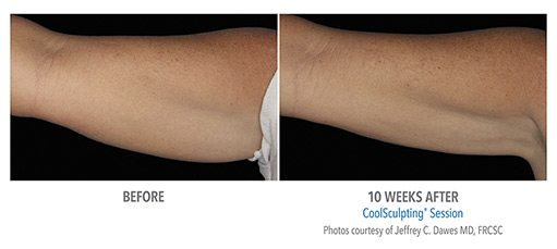 CoolSculpting Auckland | Prescription Skin Care