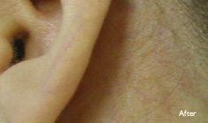veintherapy_after1 Laser Vein Treatment