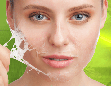 Ridding Your Wrinkles: Are Skin Peels for you?