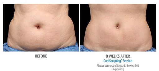 female2 CoolSculpting