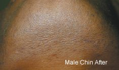 male_chin_after Laser Hair Removal